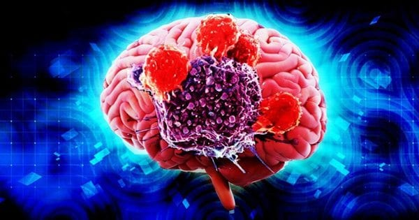 Functional Medicine – Neurological Health