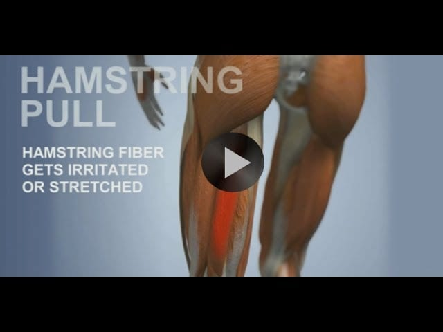 Top Chiropractors Treating Hamstring Injuries Amp Sciatica