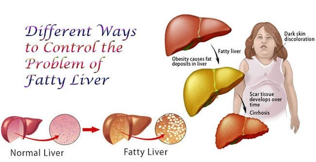 Wellness Overview: Non-Alcoholic Fatty Liver Disease