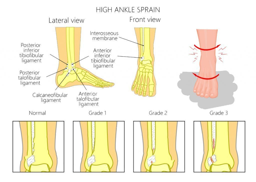 stock vector illustration of mechanism of formation of a high ankle sprain syndesmotic sprain and grades of