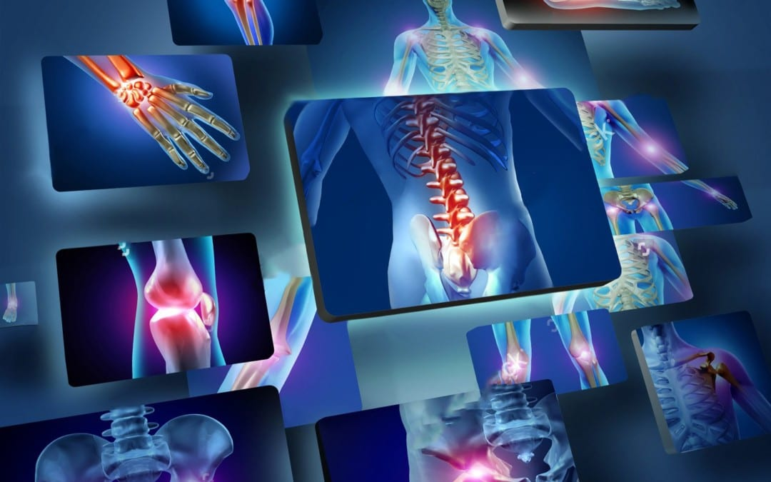 Alleviate Joint Inflammation With Chiropractic Therapy
