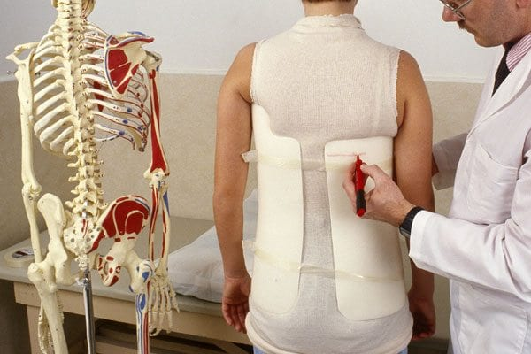 Scoliosis Treatment Options and Home Remedies