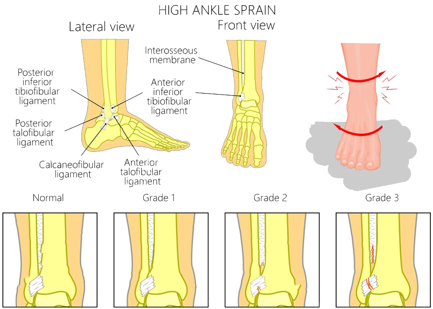 sprain and strain treatment - injury medical and chiropractic clinic el paso, tx.