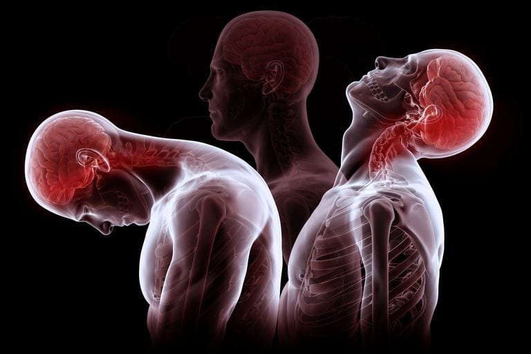 Studies Demonstrate Effectiveness of Chiropractic for Whiplash