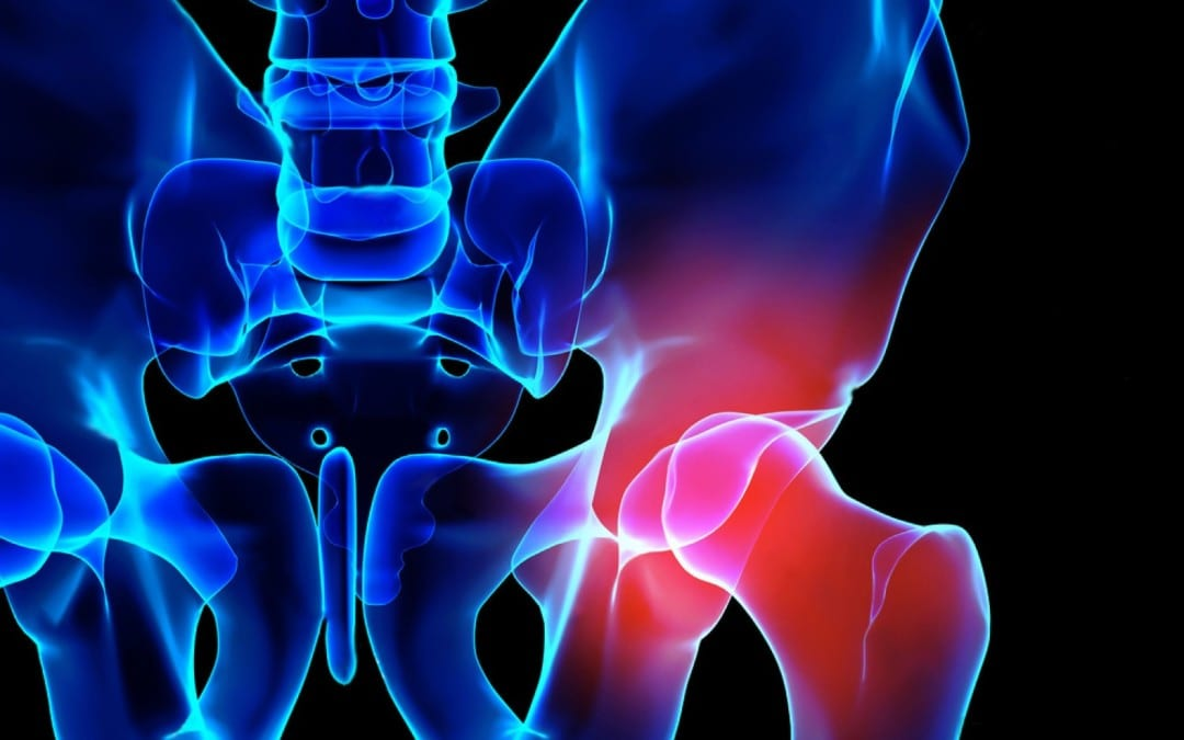 Hip Pain & Sports: Science Based