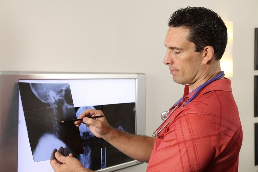Chiropractor X-Rays El Paso, TX Back Clinic