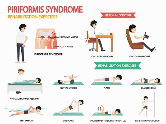 Relieve Piriformis Syndrome With Chiropractic Care