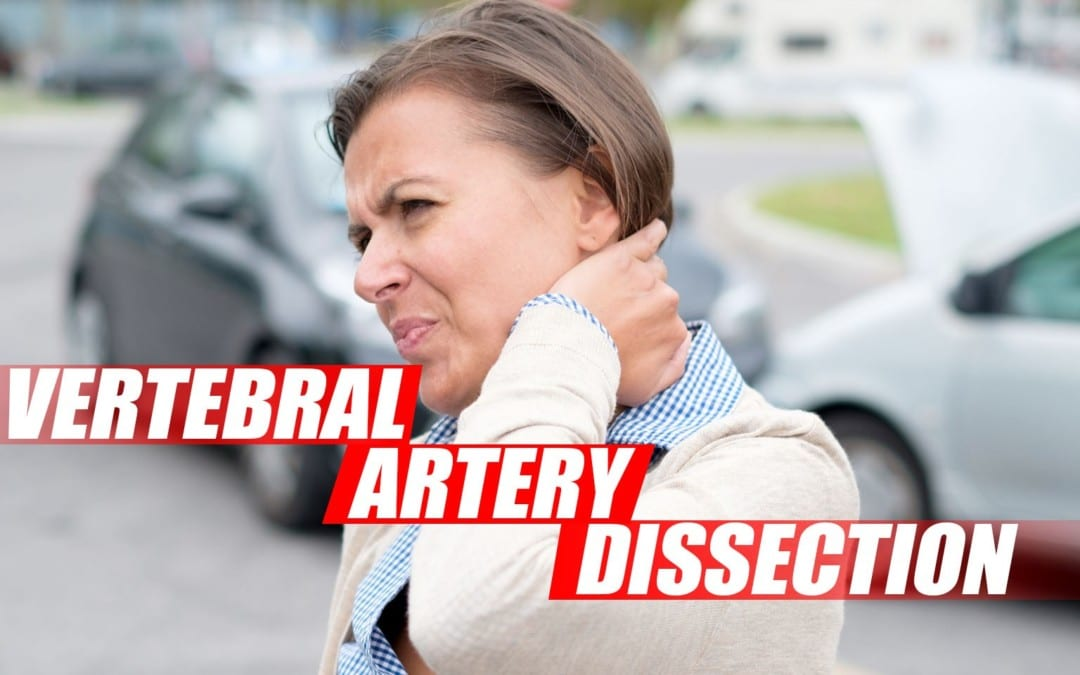 Vertebral Artery Dissection Found During Chiropractic Examination