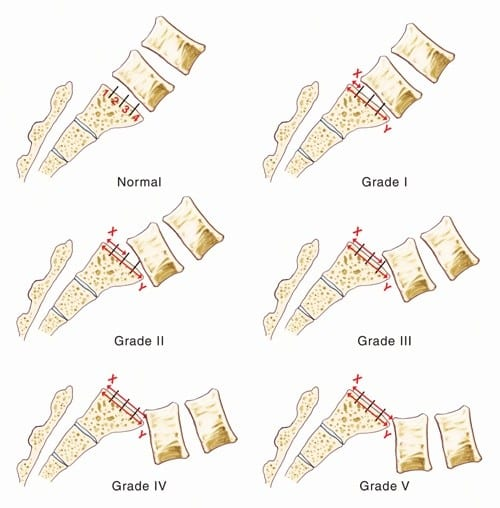 Image demonstrating the different grades of spondylolisthesis.