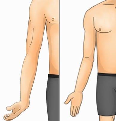 Erb's Palsy Image | El Paso, TX Chiropractor