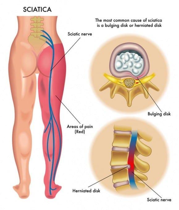 Sciatic Nerve Pain Diagram | El Paso, TX Chiropractor