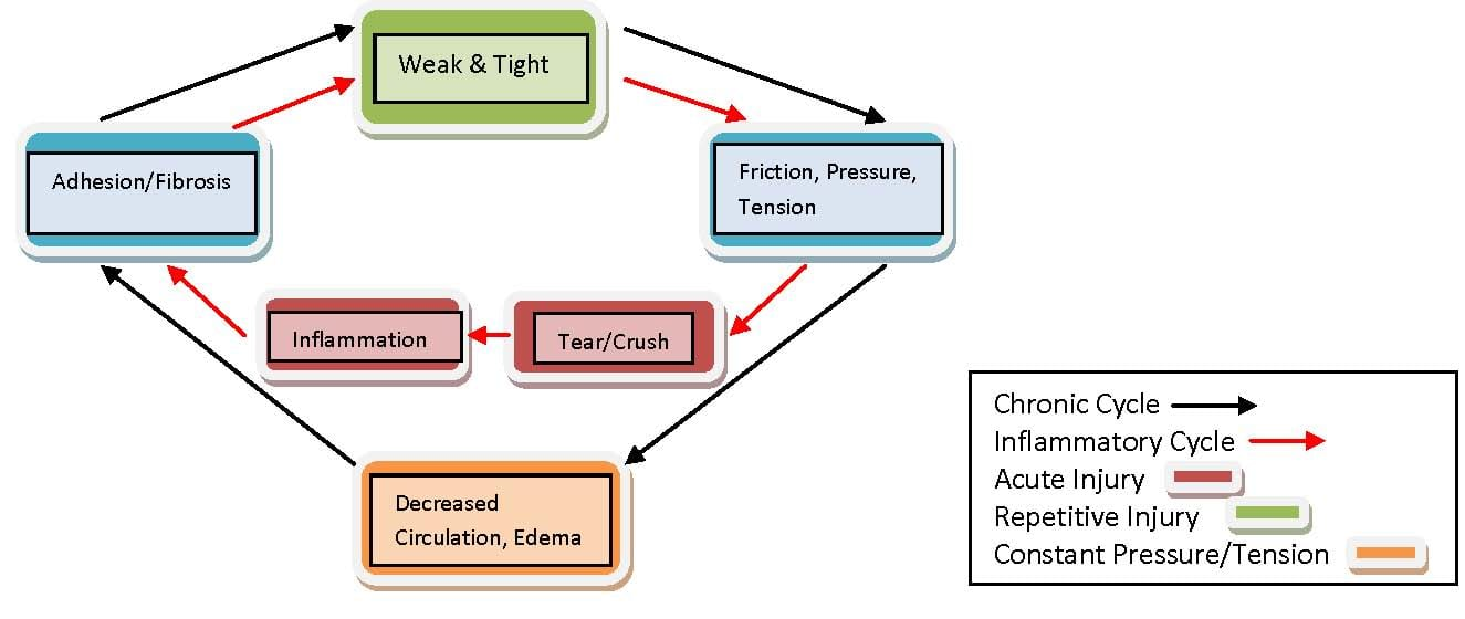 Active Release Technique Diagram 2 | El Paso, TX Chiropractor