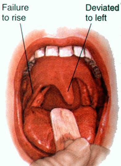 Pruebas del nervio craneal IX y X | El Quiropráctico El Paso, TX