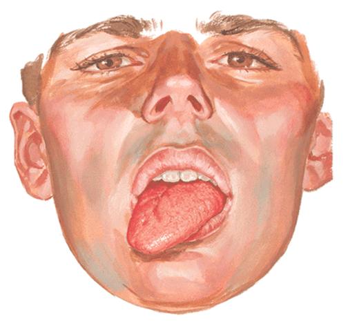Pruebas de Cranial Nerve XII | El Quiropráctico El Paso, TX