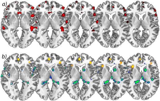 図2の脳の灰色の増加