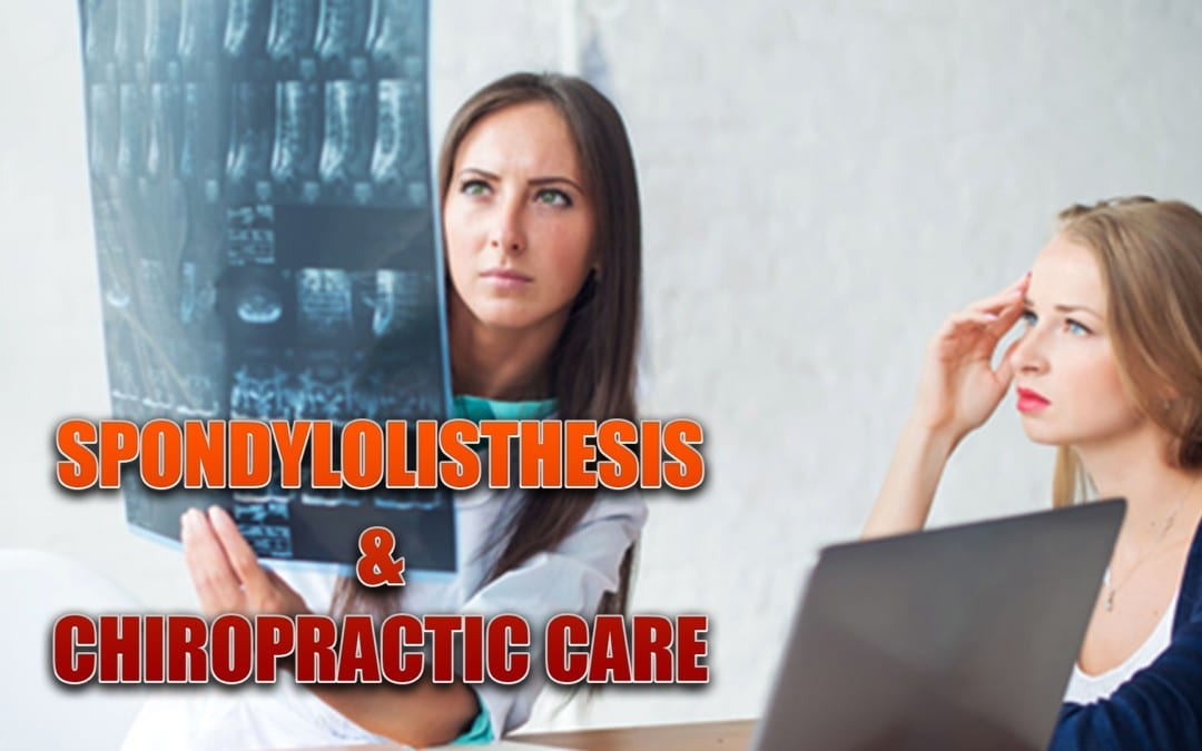 Spondylolisthesis And Chiropractic Care