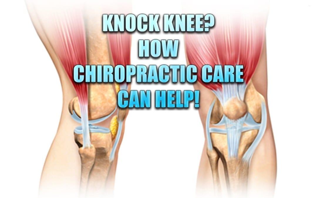 ¿Golpear la rodilla? La quiropráctica puede ayudar con esta condición
