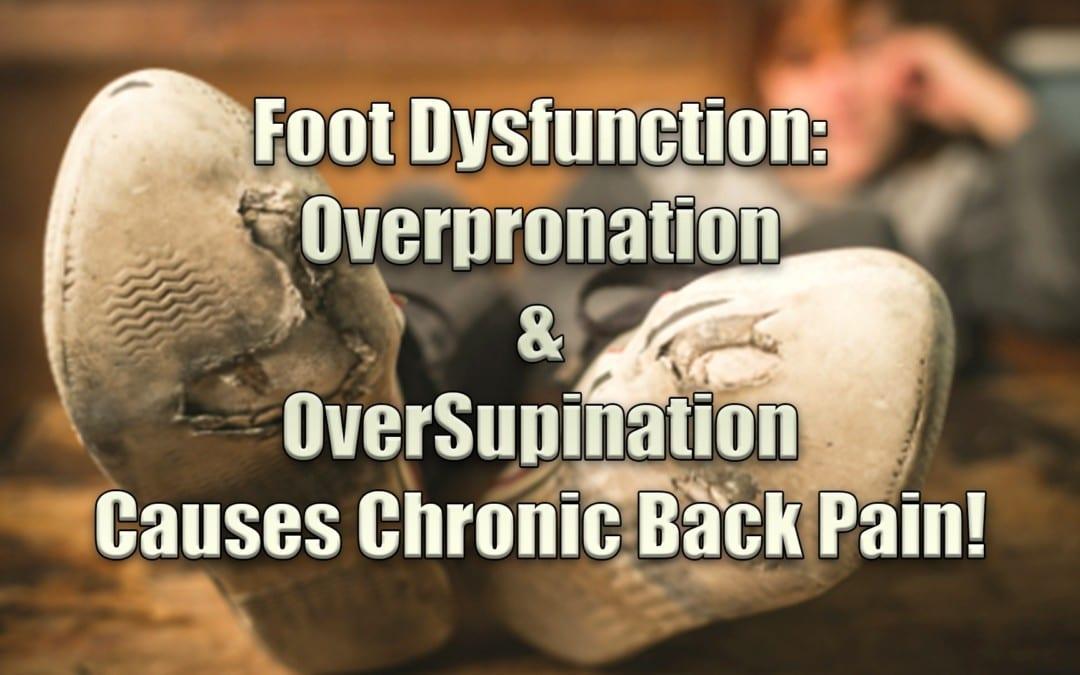 Disfunción del pie: la pronación excesiva y la supinación provocan dolor de espalda crónico