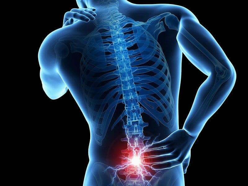 Lumbar Disc Nomenclature: Version 2.0
