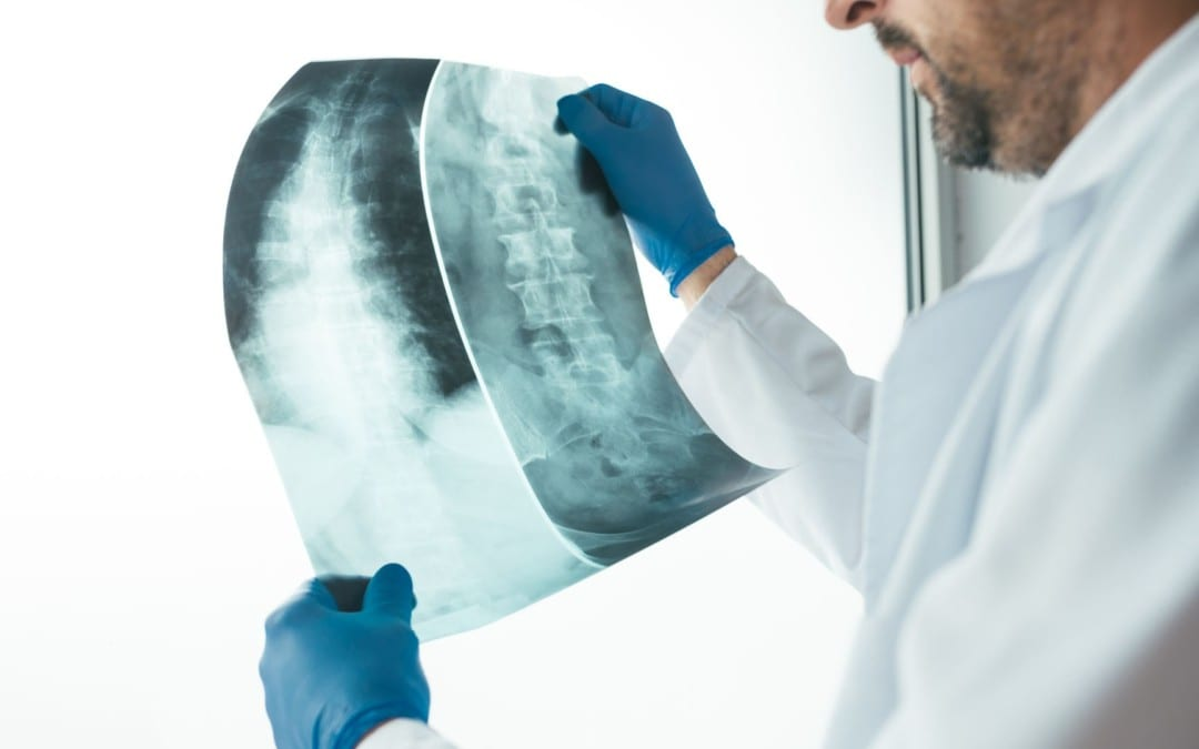 Spinal Neoplasms Diagnostic Imaging Approach Part I