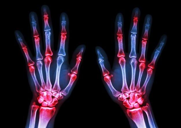 Diagnosi e gestione dell'artrite reumatoide