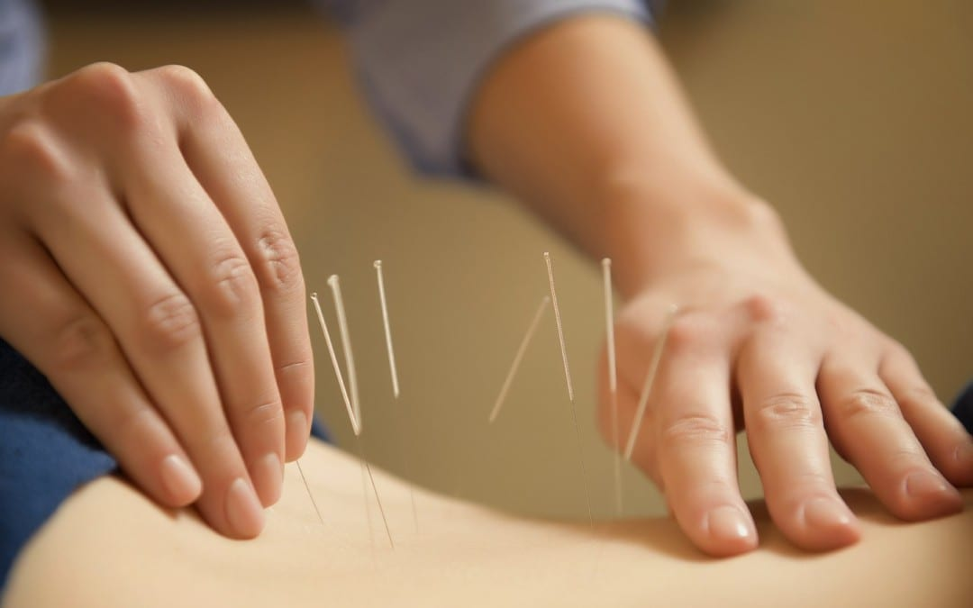 Is Acupuncture for Chiropractors Legal?