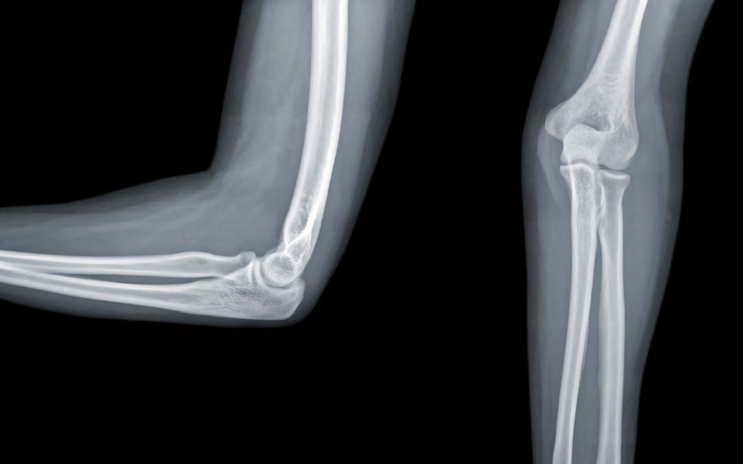 The Elbow: Diagnostic Imaging Approach | El Paso, TX.