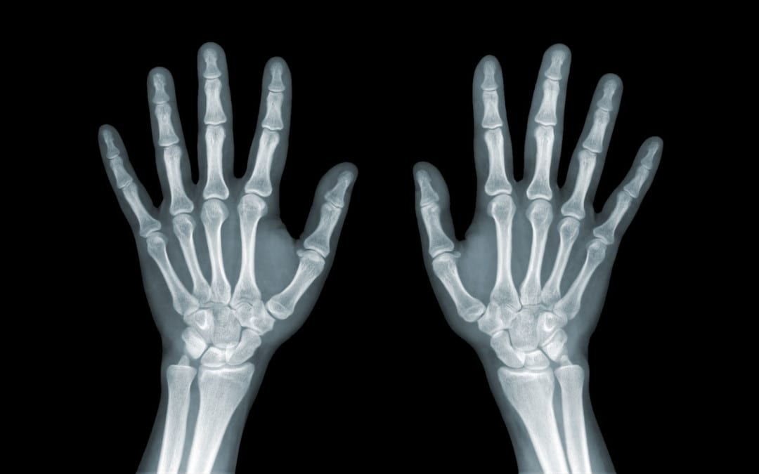 Wrist/Hand Arthritis And Trauma: Diagnostic Imaging | El Paso, TX.