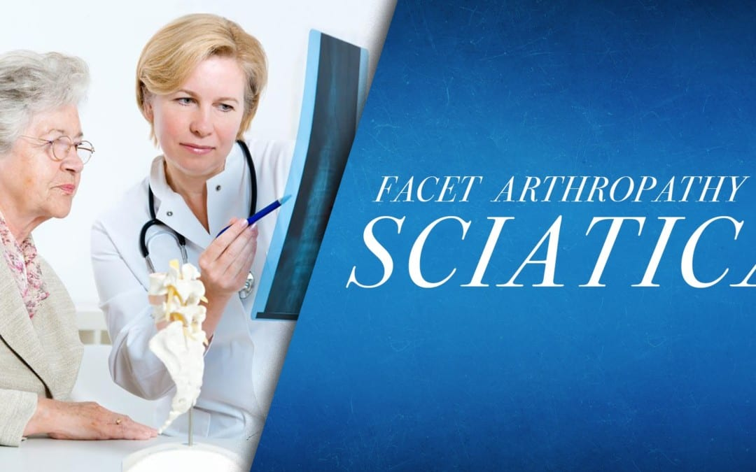 Facet Arthropathy vs Sciatica