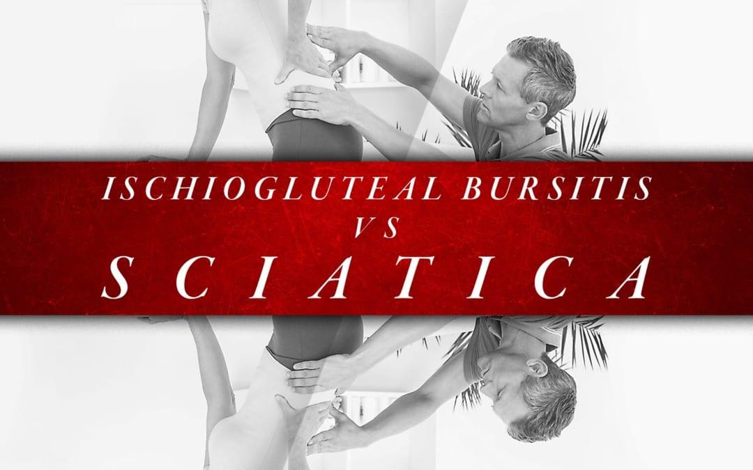 Ischiogluteal Bursitis vs Sciatica