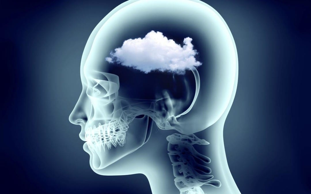 Functional Neurology: Understanding Brain Fog and Head Pain