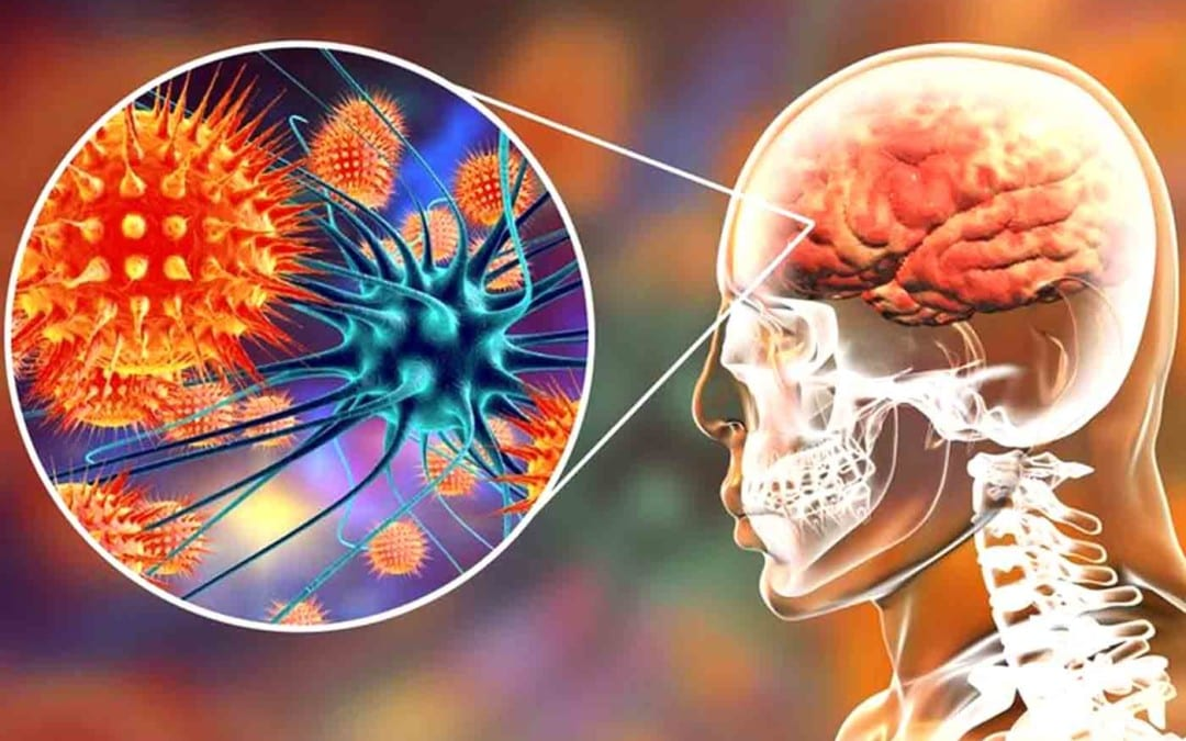 Functional Neurology: Understanding Autoimmune Brain Disease