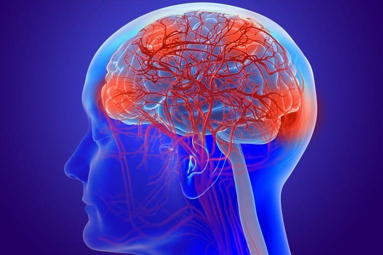Functional Neurology: What is a Leaky Brain?