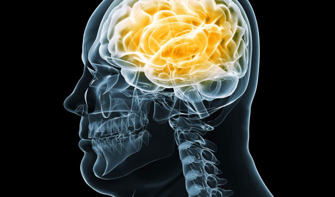 Functional Neurology: Brain Health and Obesity